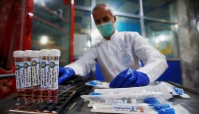 На відміну від Трампа: понад 20 країн підтримали ВООЗ у боротьбі з коронавірусом